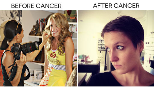 Hearing that Jennifer Arnold has a rare cancer brings back all kinds of emotions. I too had that rare cancer. I was stage 3 Choriocarcinoma..... via lilblueboo.com #cancer #choriocarcinoma